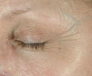 Before Elastiderm Eye Cream