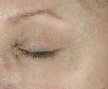 After Elastiderm eye cream